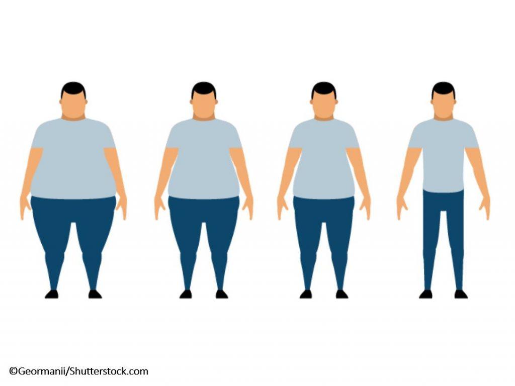 النتائج والنظام الغذائي بعد عملية تكميم المعدة ومرحلة الشفاء