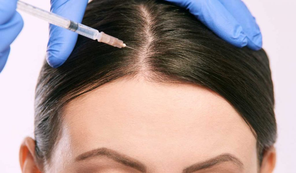 البلازما وحل مشكلة تشاقط الشعر